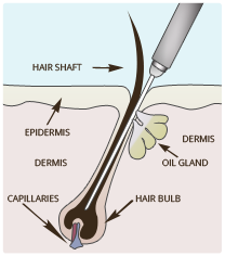 What Is Electrolysis